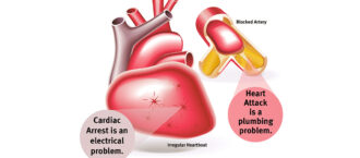 Atacul de cord versus stopul cardiac
